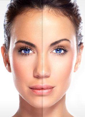 CUIDEMONOS UNOS A OTROS: 20 remedios caseros para manchas en la piel