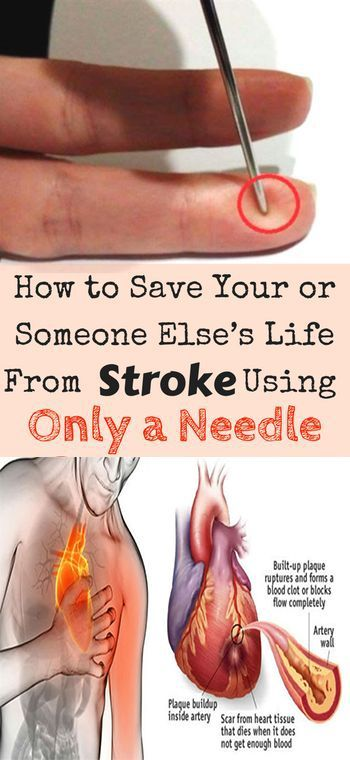 A needle can save a patient's life from a stroke. This advice is from a Chinese professor who says that we all need to keep a needle or a syringe in the house. This is an amazing and unconventional way to help a man survive a stroke. Share this advice to help someone survive! Take the time to
