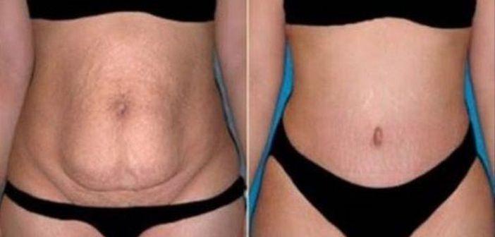 pierderea in greutate fata de arderea grasimilor