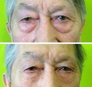 Jeunesse Instantly Ageless Skin Care