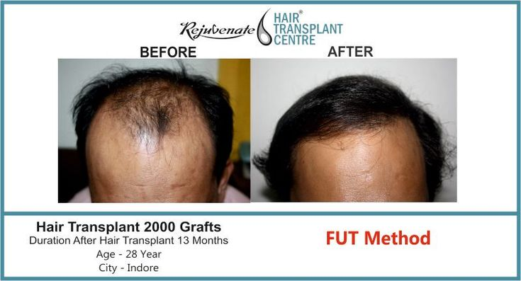 There are very good ethical #hair  #indian r's in #India. #hairloss  treatment and transplant are mainly done by the plastic surgeon and also by a dermatologist and those who have passed Diplomate of the American board of hair restoration. You shall see the qualification of a doctor and also see their qualifications are recognized by #medical  council of India and they shall have good experience of hair transplant. You can also visit the website of  www.ishrs.org and www.ahrsindia.com and…