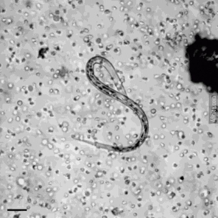 Vücudumuzdaki Beyaz Kan Hücreleri Bir Parazite Saldırken - 4finite.com