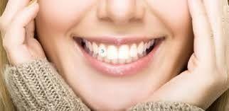 A Clínica Argüero disposem d'una àmplia varietat de pírcings dentals perquè vagis a la moda. Són molt fàcils de col·locar, és un tractament que no fa mal i no cal anestesiar. Vine a veure'ns i junts trobarem la millor opció per tu!