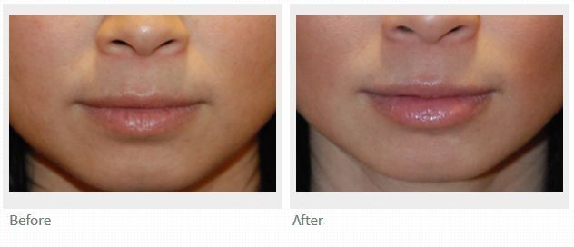 Seattle   Bellevue Dr. Philip Young Before and After Lip Injections   Fillers   …