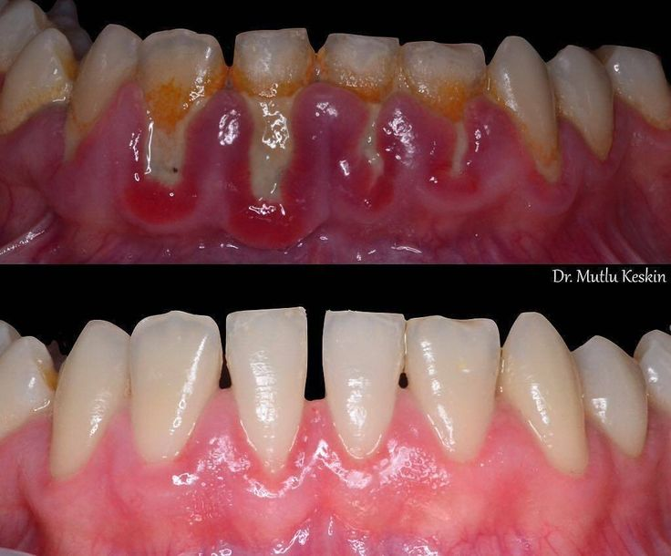 Perfect Dental Work by @mutlukeskin_ - Periodontal treatment and six-month follow-up care completed after the baseline examination. . DM us to be featured…