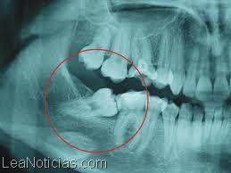 """¿Por qué las """"muelas del juicio"""" nos causan tanto dolor? - http://www.leanoticias.com/2014/03/19/por-que-las-muelas-del-juicio-nos-causan-tanto-dolor/"""