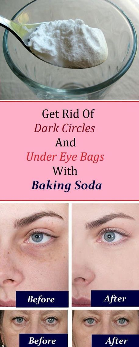 Eye bags: 1. Add 1 teaspoon of backing soda in a glass of hot water or tea and mix it well. 2. Take a pair of cotton pads and soak them in the solution and place them under the eye. 3. Let it sit for 10-15 minutes, then rinse it off and apply a moisturize