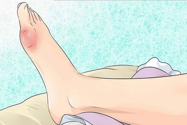 Comment prévenir la goutte et les douleurs articulaires en éliminant l'acide urique naturellement