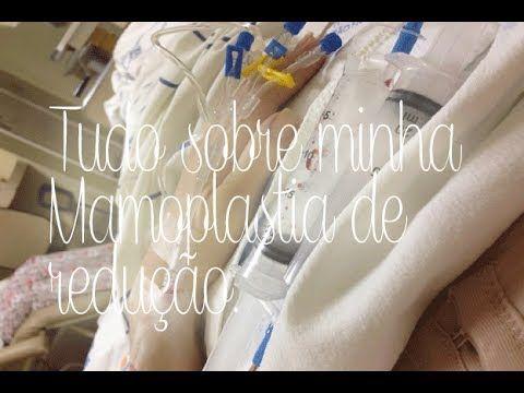 Minha mamoplastia de redução (1ª semana) por Camila Castro