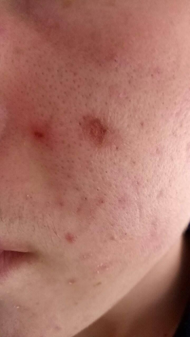 [Skin Concerns] Scab from blackhead extracting. How to help??