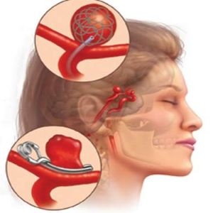 Symptoms Aneurysm Clip Art