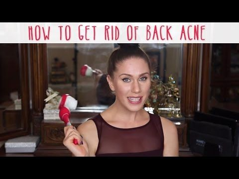 How To Treat and Get Rid Of Back Acne - Bacne | Cassandra Bankson - YouTube