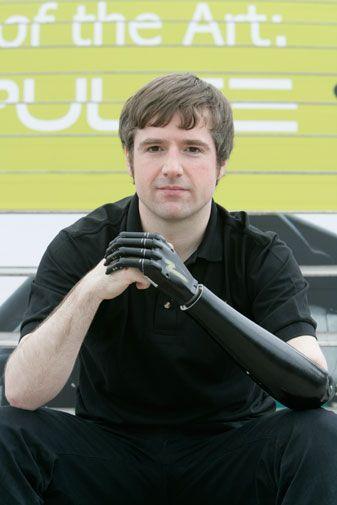 Bionic hand: Bertolt Meyer● Touch Bionics