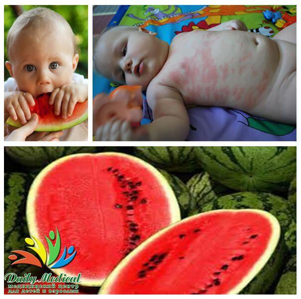 Арбуз! Полосатая аллергия #арбуз #аллергия #аллерголог #Днепропетровск #клиника #DailyMed  Арбуз, сладко-сахарный на вкус, как ни странно, может вызвать тяжелую аллергическую реакцию! «Как?, - воскликните Вы, - арбуз на 90% состоит из воды, на что же может быть аллергия?»