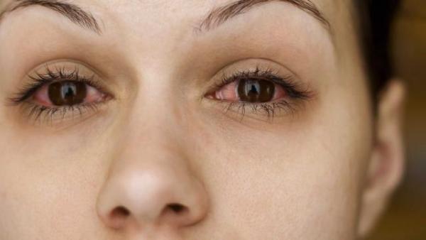 Sjogren's Syndrome | What is Sjogren's Syndrome - Natural Herbs Clinic