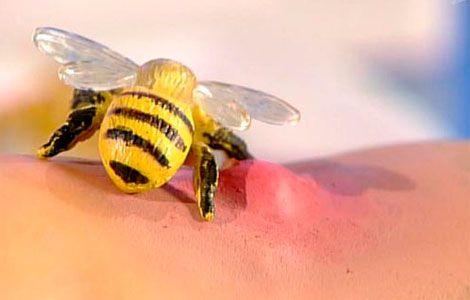 Укус пчелы или осы