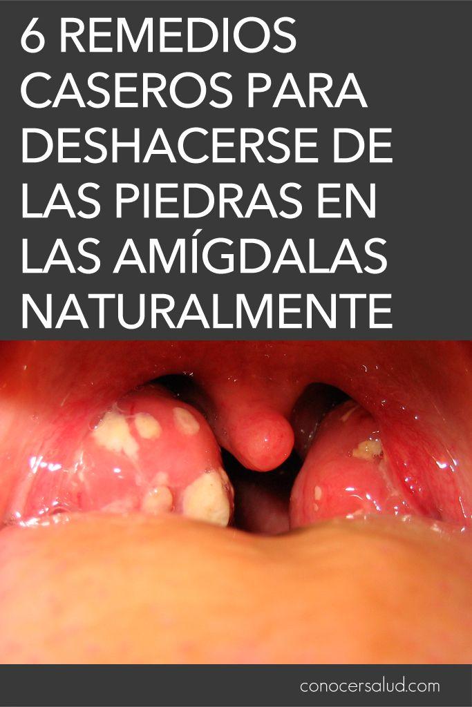 6 Remedios Caseros Para Deshacerse De Las Piedras En Las Amígdalas Naturalmente Salud Natural Medicine Colon Health Health