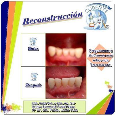 Reconstrucción Dental!