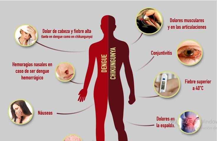 sintomas chikungunya - Buscar con Google
