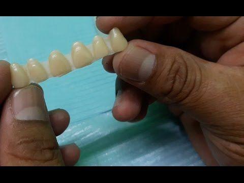 Un amigo dentista me enseñó a elimina el sarro, la gingivitis y BLANQUEAR MIS DIENTES en minutos c - YouTube
