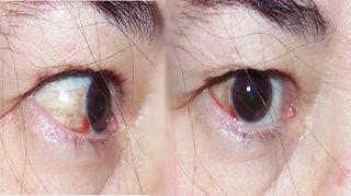 Masso Vita: Tive uma hemorragia ocular, e agora?