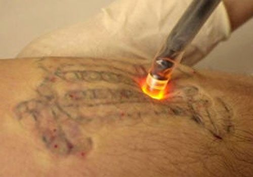 13 best re tattoo 39 d images on pinterest laser tattoo for New tattoo removal technology