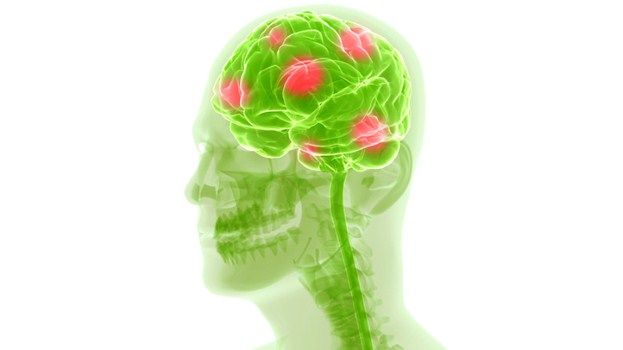 Is It a Migraine or a Cluster Headache? By Denise Mann Reviewed by Farrokh Sohrabi, MD Migraine and cluster headaches have different symptoms and require different treatments. Here's what to know to target and treat your aching head.