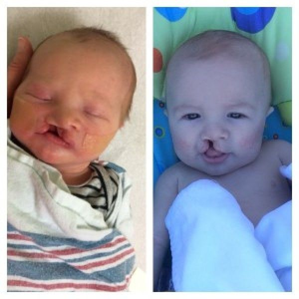 I had a thousand worries about my baby's cleft lip. One of them was Facebook.