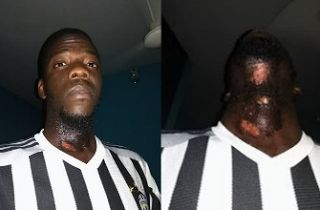 New on my blog! Man shares photos of Burns he suffered after using Aftershave with Fake Expiry Date http://www.badrosblog.com/2017/08/man-shares-photos-of-burns-he-suffered-after-using-aftershave-with-fake-expiry-date.html?utm_campaign=crowdfire&utm_content=crowdfire&utm_medium=social&utm_source=pinterest