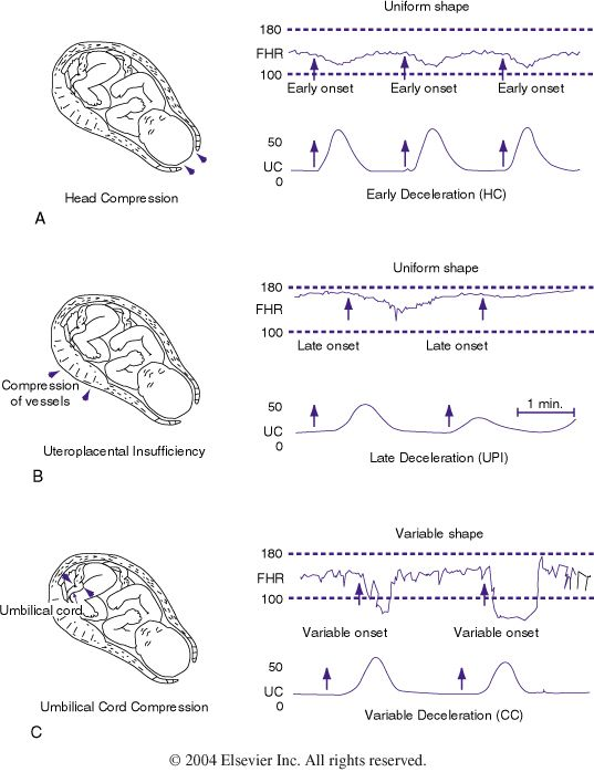 Figure 85-4 Patterns of periodic fetal heart rate (FHR) deceleration....                                                                                                                                                      More