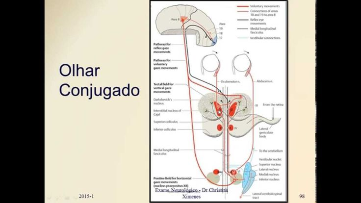 Semiologia Neurológica - Nervos Cranianos - Movimentação Ocular Extrínseca