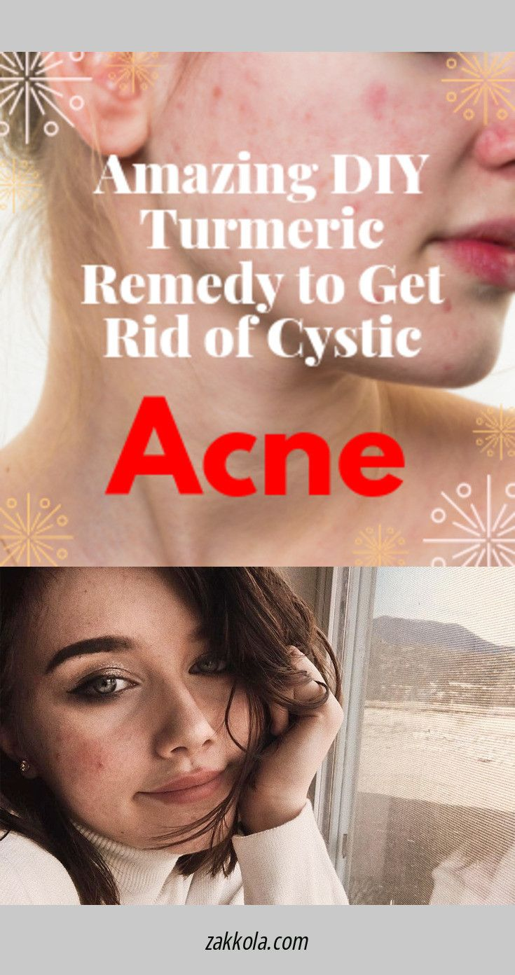 Find out about acne. Follow the link to read more…