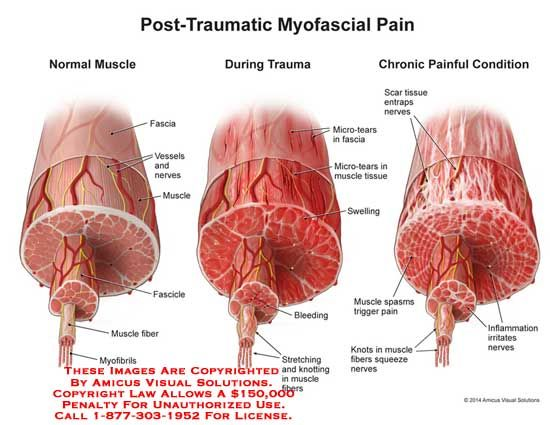 Post Traumatic Myofascial Pain Knot Knot Who S There