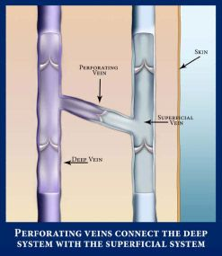 venous valves in great saphenous vein - Google Search