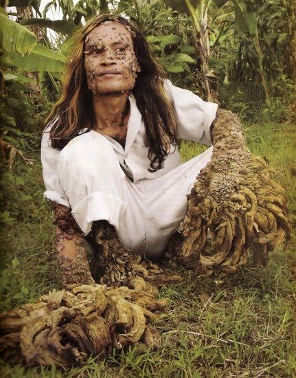 "It's Dede: The ""Tree Man""    Dede, aka ""Tree Man"", is an Indonesian fisherman who has been slowly changing from a human into a tree… or at least that is what it appears.    After cutting his knee as a teenager, Dede began to grow tree like warts that have baffled local doctors and medical experts for over 20 years."