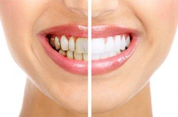 Отбеливание зубов - лучшие способы и системы для дома. Как отбелить зубы в домашних условиях, видео