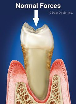 Loose Teeth – Biting Forces Can Loosen Teeth #i #need #to #find #a #dentist  #loose tooth # Loose Teeth Secondary Occlusal (Bite) Trauma: Even normal forces can http://reviewscircle.com/health-fitness/dental-health/natural-teeth-whitening/