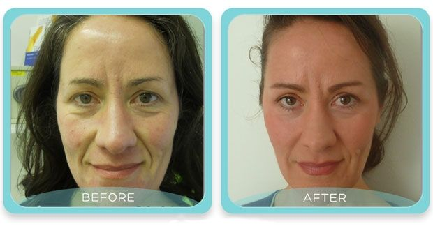 CO2 Fractional Laser Resurfacing - Reviewed