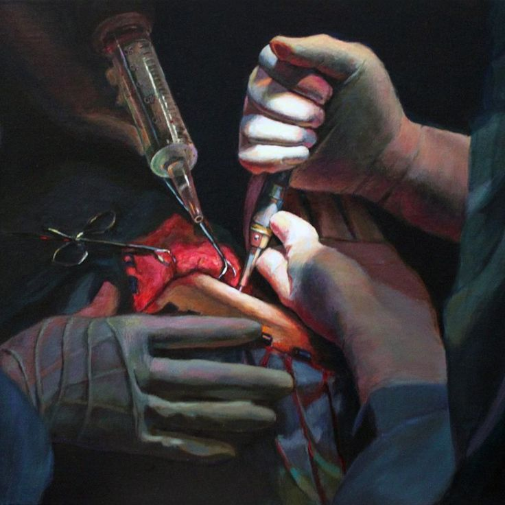 "❤💚- doc ambidexter (@doc_ambidexter) on Instagram: ""painting: Craniotomy in G Sharp 🎵🎶 🎻 music to accompany brain surgery * * * #painting #fineart…"""