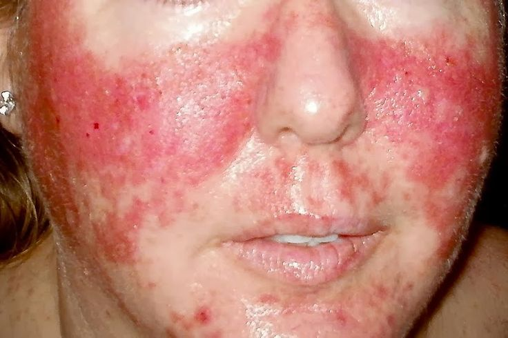 Skin Rashes in Children on Face in Adults on Hands on Arms that ...