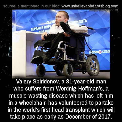 Valery Spiridonov, a 31-year-old man who suffers from Werdnig-Hoffman's, a muscle-wasting disease which has left him in a wheelchair, has volunteered to partake in the world's first head transplant which will take place as early as December of 2017.