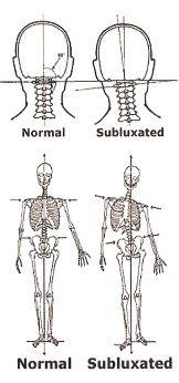 What is Atlas Subluxation Complex (ASC)?   http://www.uppercervicalhealthcentersboise.com/blog/atlas-subluxation-in-boise-idaho  Is your head on straight? Head and neck alignment is critical to optimal health.