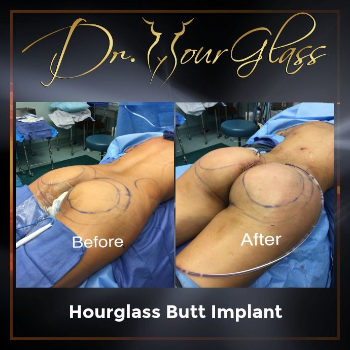 Some women prefer Hourglass Butt Implant to enhance their behind since it doesn't involve liposuction. Well, this is also a great surgical option in case you don't have enough body fat or cannot gain weight for buttocks augmentation.