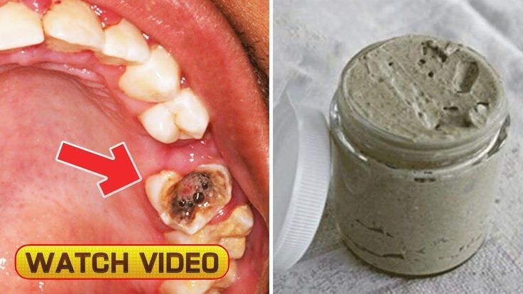 Pin on gum disease remedies home made