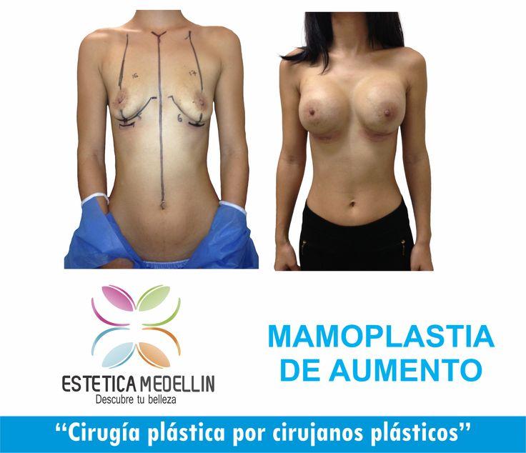 #MamoplastiadeAumento #CirugíaPlastica  #EsteticaMedellin  Pide YA TU CITA DE VALORACION Teléfono: 2688128 WhatsApp 3218736882