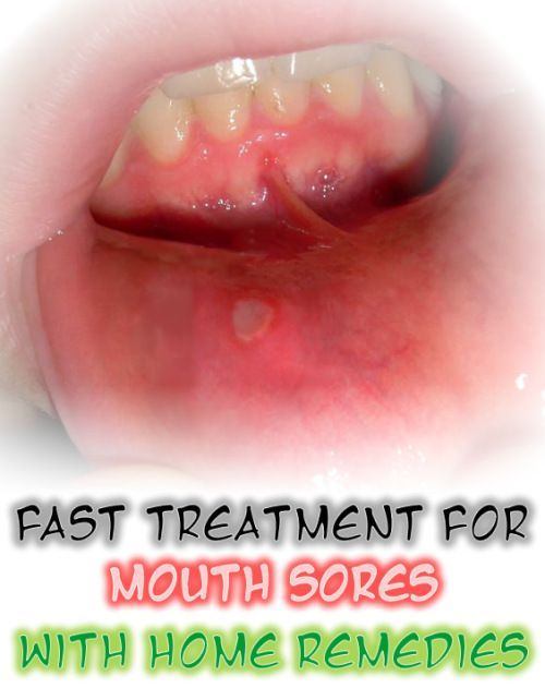 Mouth Sores Home Remedies: