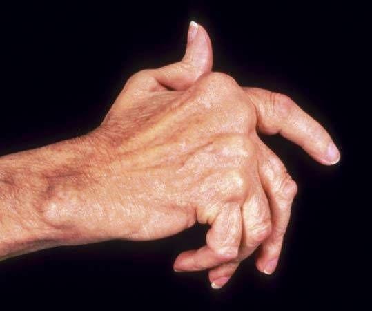 Diet for Severe Arthritis