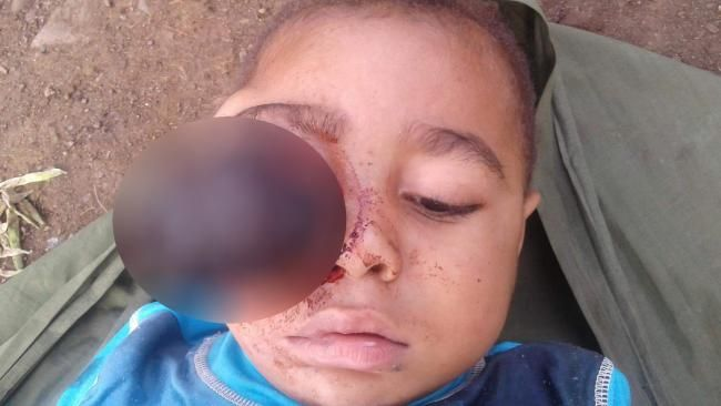 Bongre: PNG boy's facial tumour sparks campaign to bring 3yo to Australia