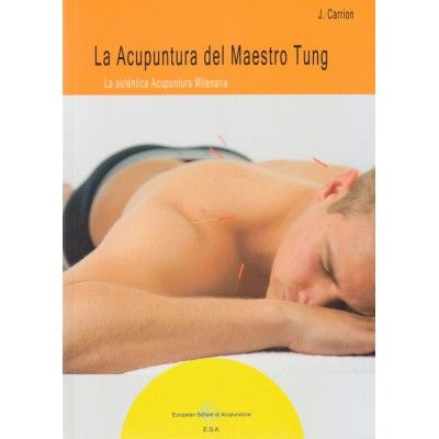 La acupuntura del Maestro Tung | Josep Carrion  | ed. Autor