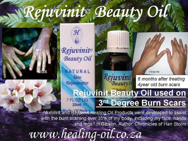 Rejuvinit Beauty Oil suitable for all kinds of scarring including acne scars, stretch marks, burn scarring, keloids. www.healing-oil.co.za
